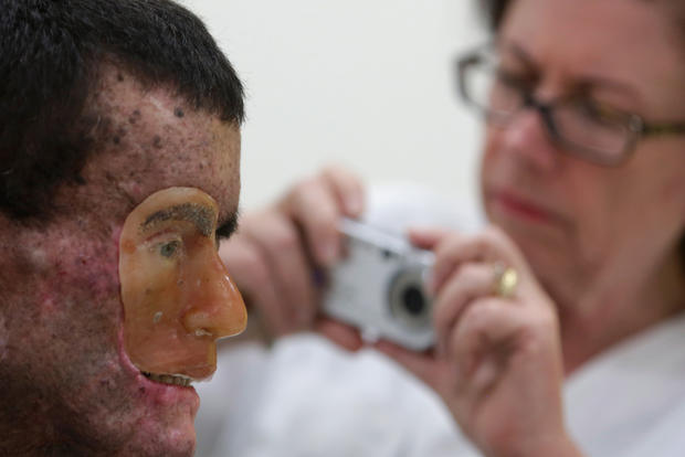 Rare genetic disease ravages village in Brazil (graphic images)