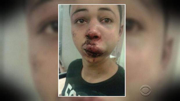 beatenpalestinianboy.jpg