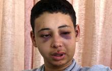 American teen allegedly beaten by Israeli police