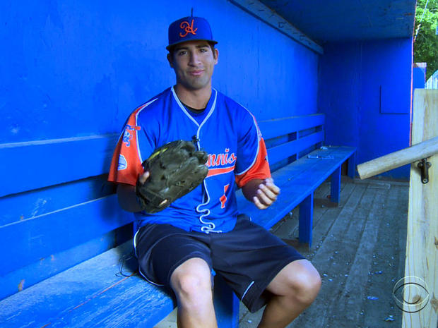 Ryan Perez displays his his six-fingered baseball glove.