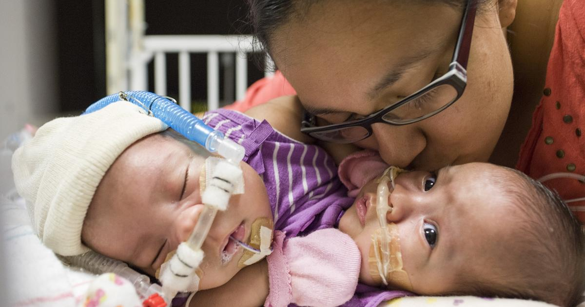 Conjoined twins separated as adults