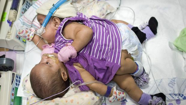 conjoined-twins-5.jpg