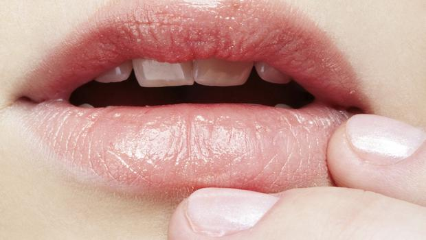Whaty Do Developing Herpes Cold Sores Look Like? 2