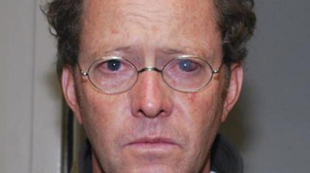 警方拍到约翰尼·沃尔的眼睛受伤。