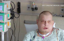 """""""Most extensive"""" full face transplant patient recovering"""