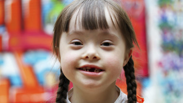 an introduction to the issue of down syndrome in the united states 3 introduction down syndrome is one of the most common genetic disorders with reports of one infant in every 600-800 live births (alton, 1998.