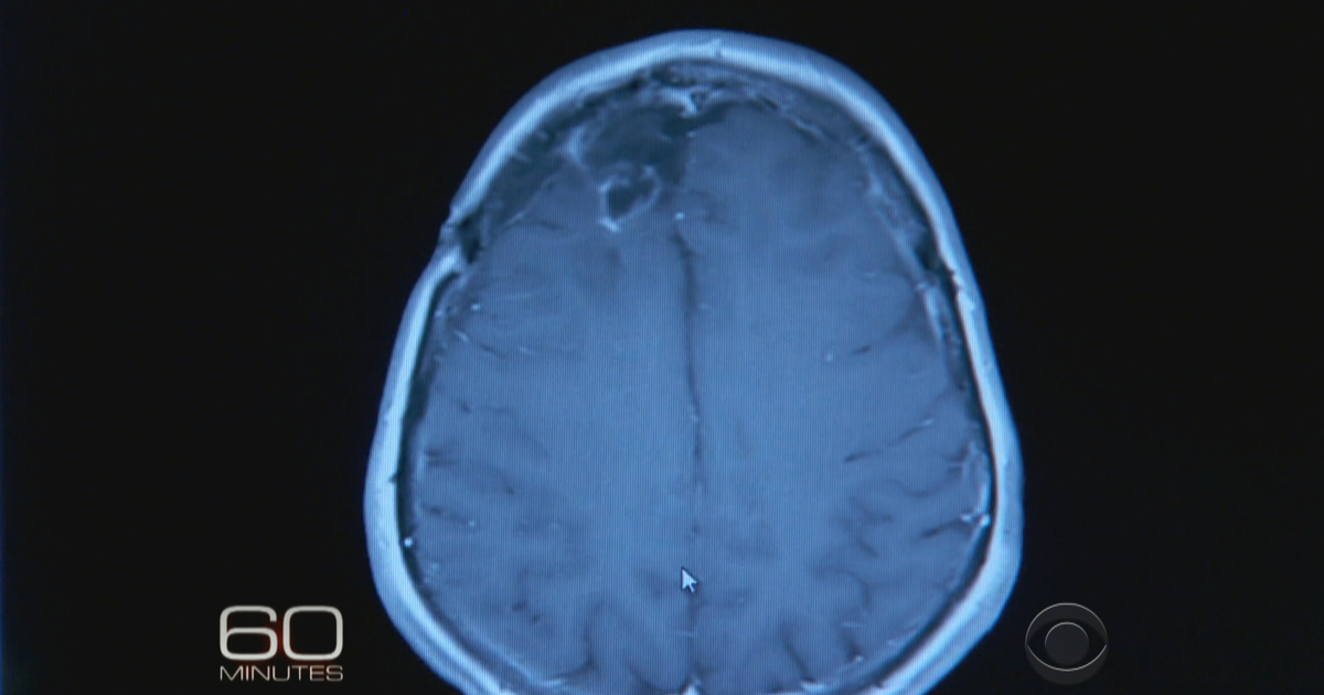 Promising brain cancer trial given breakthrough status by FDA - CBS News