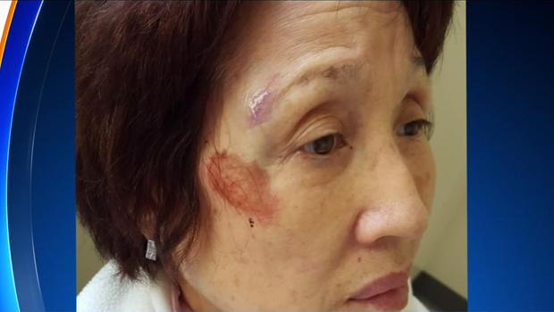 好的,62岁的金俊是在2016年4月14日与洛杉矶韩国城附近的警察发生争执后拍摄的。