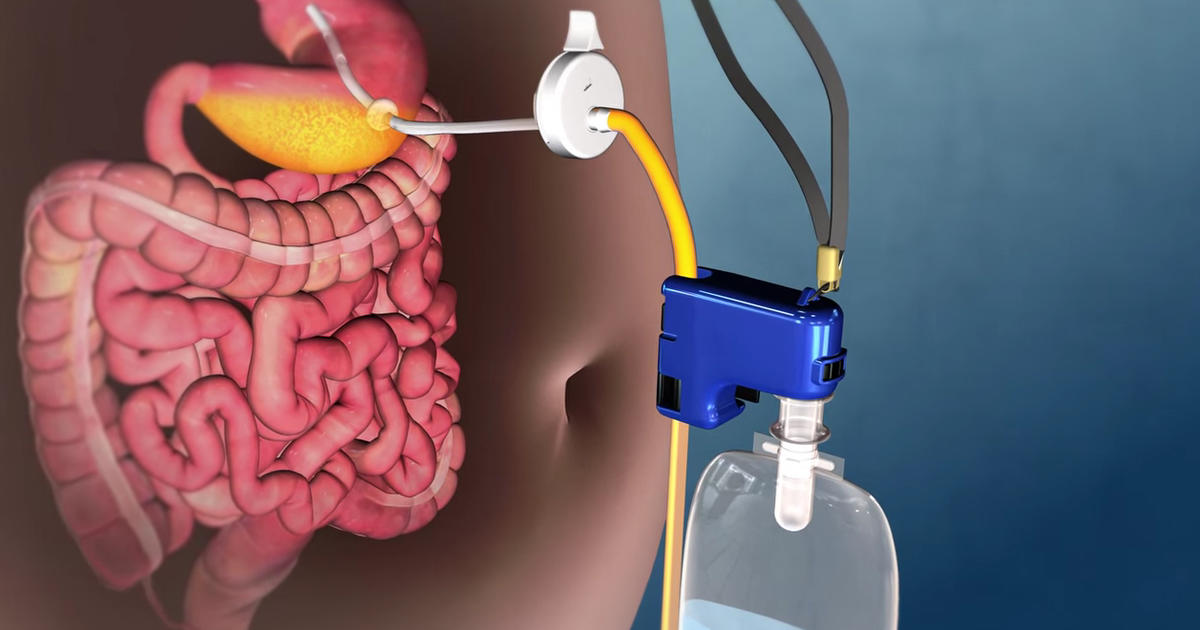 New weight-loss device makes some medical experts queasy ...
