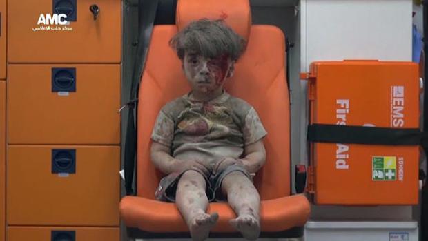 aleppo-injured-boy.jpg