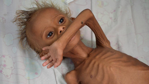 Yemen's coast struggles with severe malnutrition as conflict drags ...