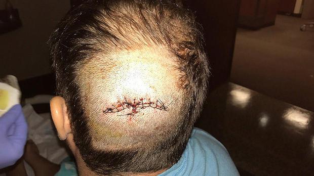 高尔夫injury1.jpg