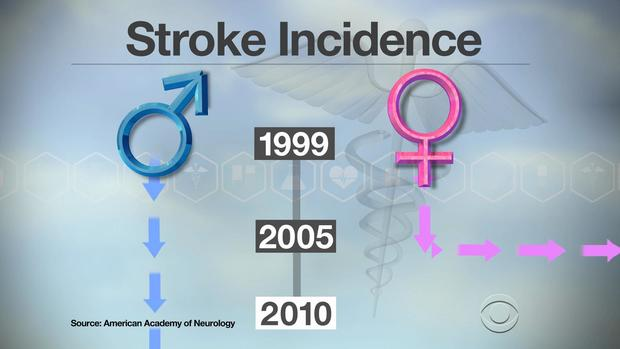 Strokes on the decline in men but not in women, study finds