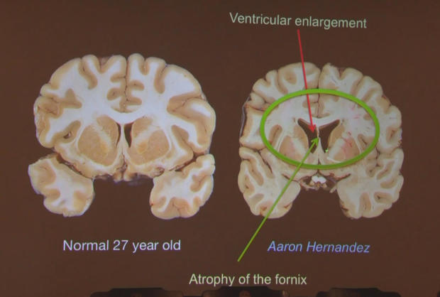 CTE-埃尔南德斯brain.jpg