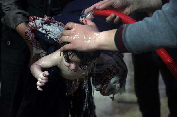 一名儿童在叙利亚Ghouta东部杜马的一家医院接受治疗,之后叙利亚医疗救助组织称其为疑似化学袭击事件