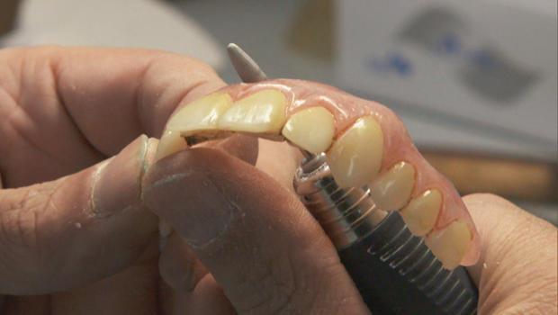 支 - 马利克 - 假牙齿逐克里斯 - 里昂 -  620.jpg