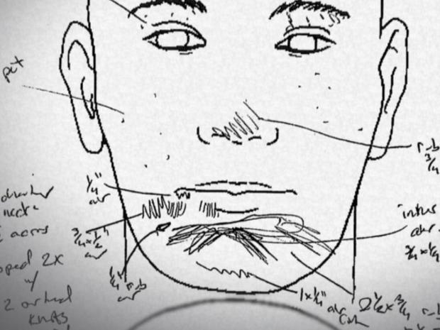 neurauter-autopsy.jpg