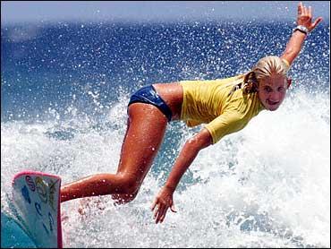 teen surfer loses arm to shark jpg 1080x810