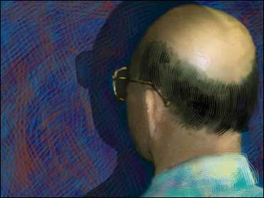 Laser Comb, Cloning to Re-grow Hair? - CBS News
