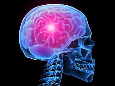 Brain Imaging Studies Seek Signs Of >> Brain Scans Show Ptsd Not Just Mental Cbs News
