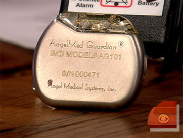 New Device May Prevent Heart Attacks - CBS News