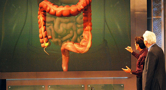 Dr Oz S Colonoscopy Finds Pre Cancerous Polyp What Can He Teach Us Cbs News