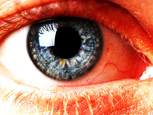 Gray Ring Around The Cornea 12 Scary Things Your Eyes