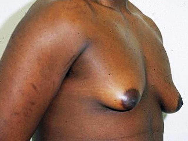 Men with big breasts