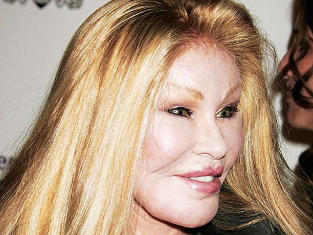 Celebrity Plastic Surgery Disasters Cbs News