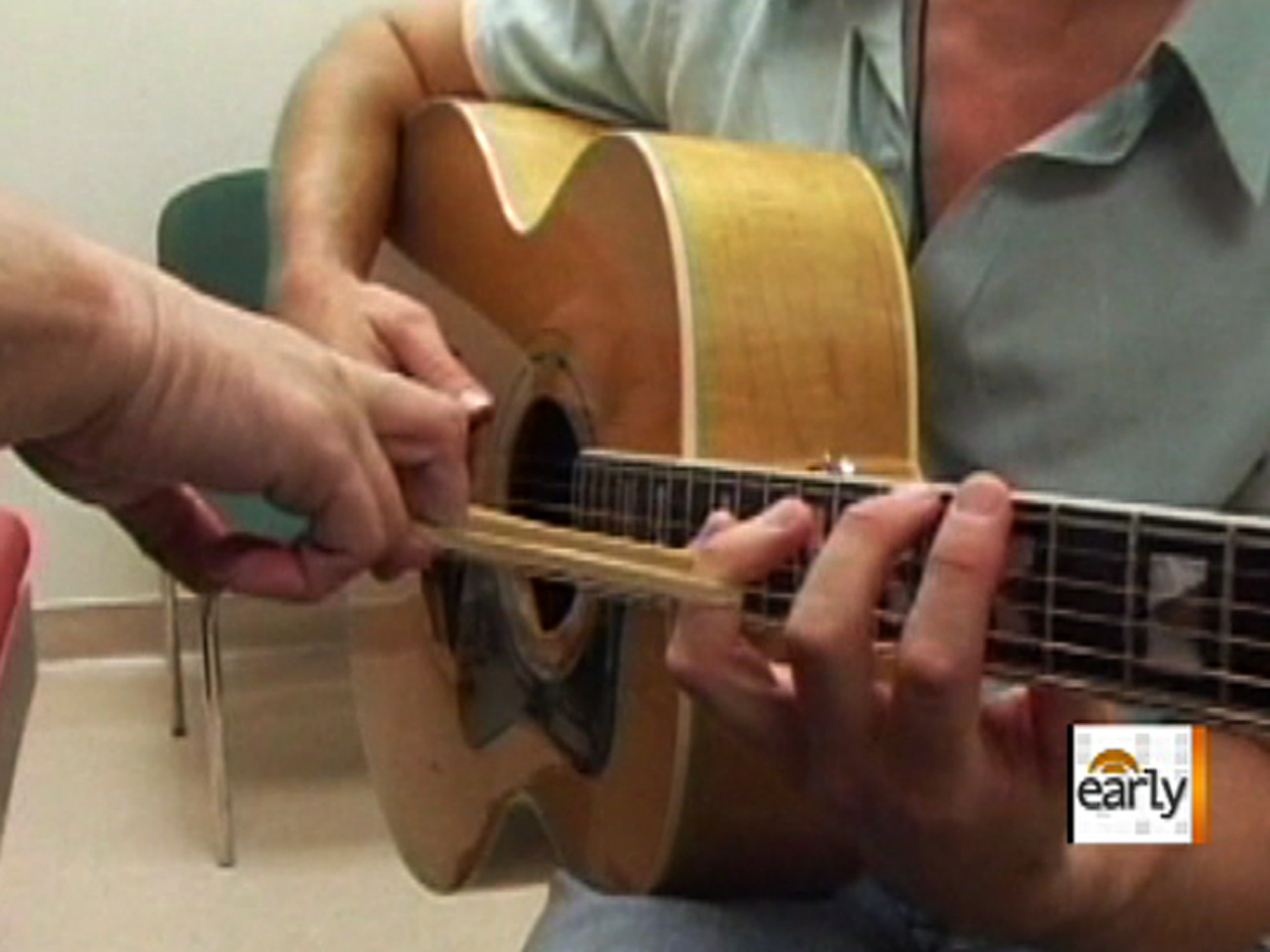 Guitarist Switches Playing Hand To Make Comeback Cbs News