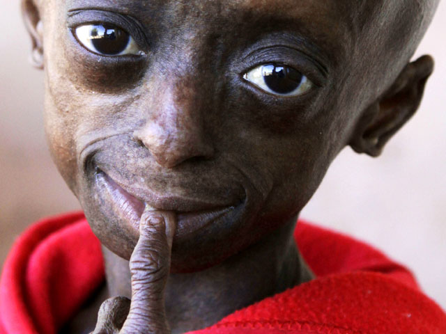 Progeria: First black child with rare aging disease ...
