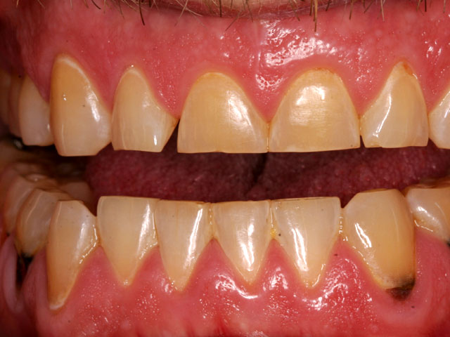 Does Deep Cleaning Whiten Teeth  Teeth Whitening Dental