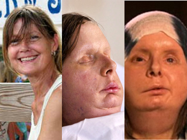 Charla Nash shows off face months after transplant - CBS News