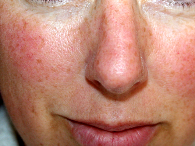 Red Skin Condition Rosacea May Be Due To Bacteria In Skin Mites