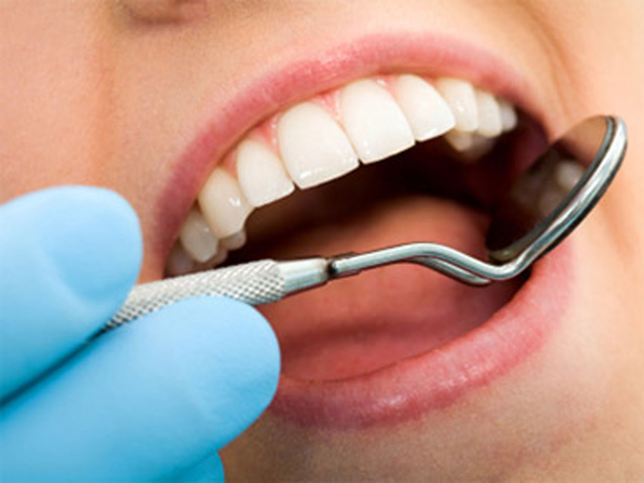 Dental cavities may protect against oral, throat cancers - CBS News