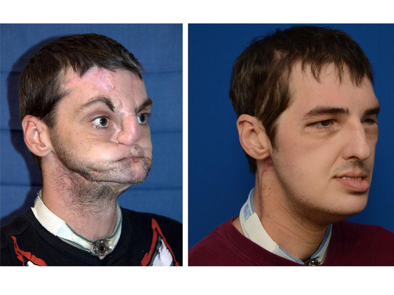 Face Transplant Recipient Impresses Doctors Seven Months