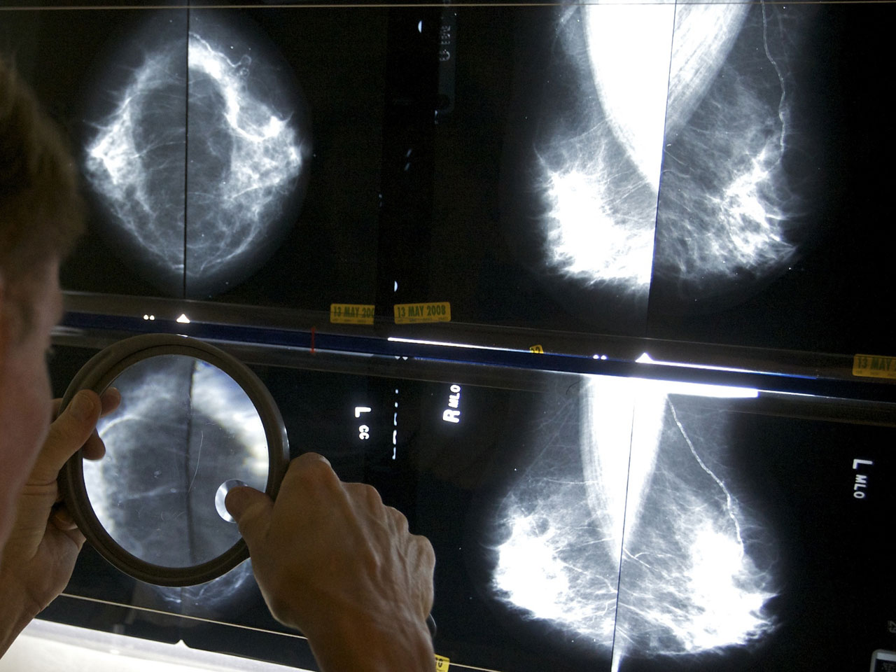 Mammograms For Women Ages 50 To 74 May Not Be Needed Every Year