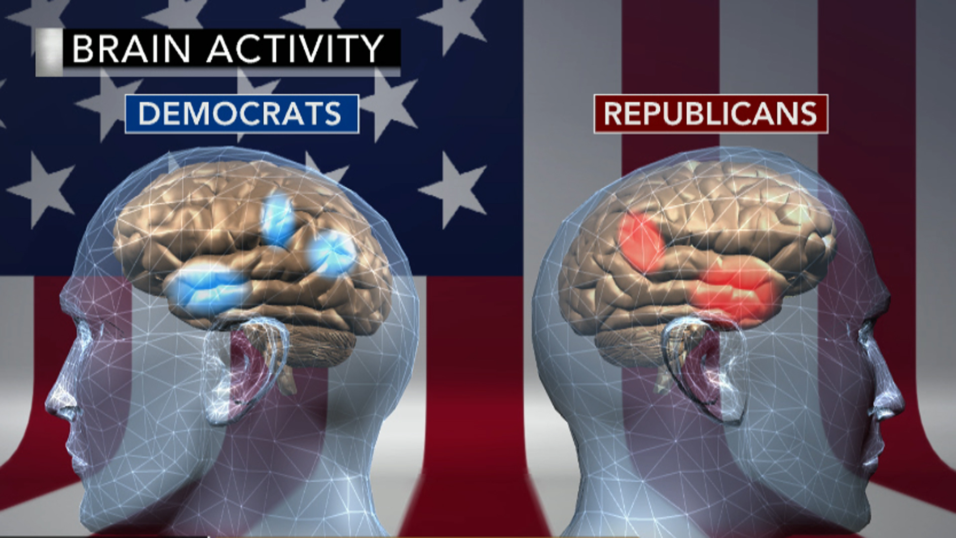 Politically predetermined? Your brain on politics - CBS News
