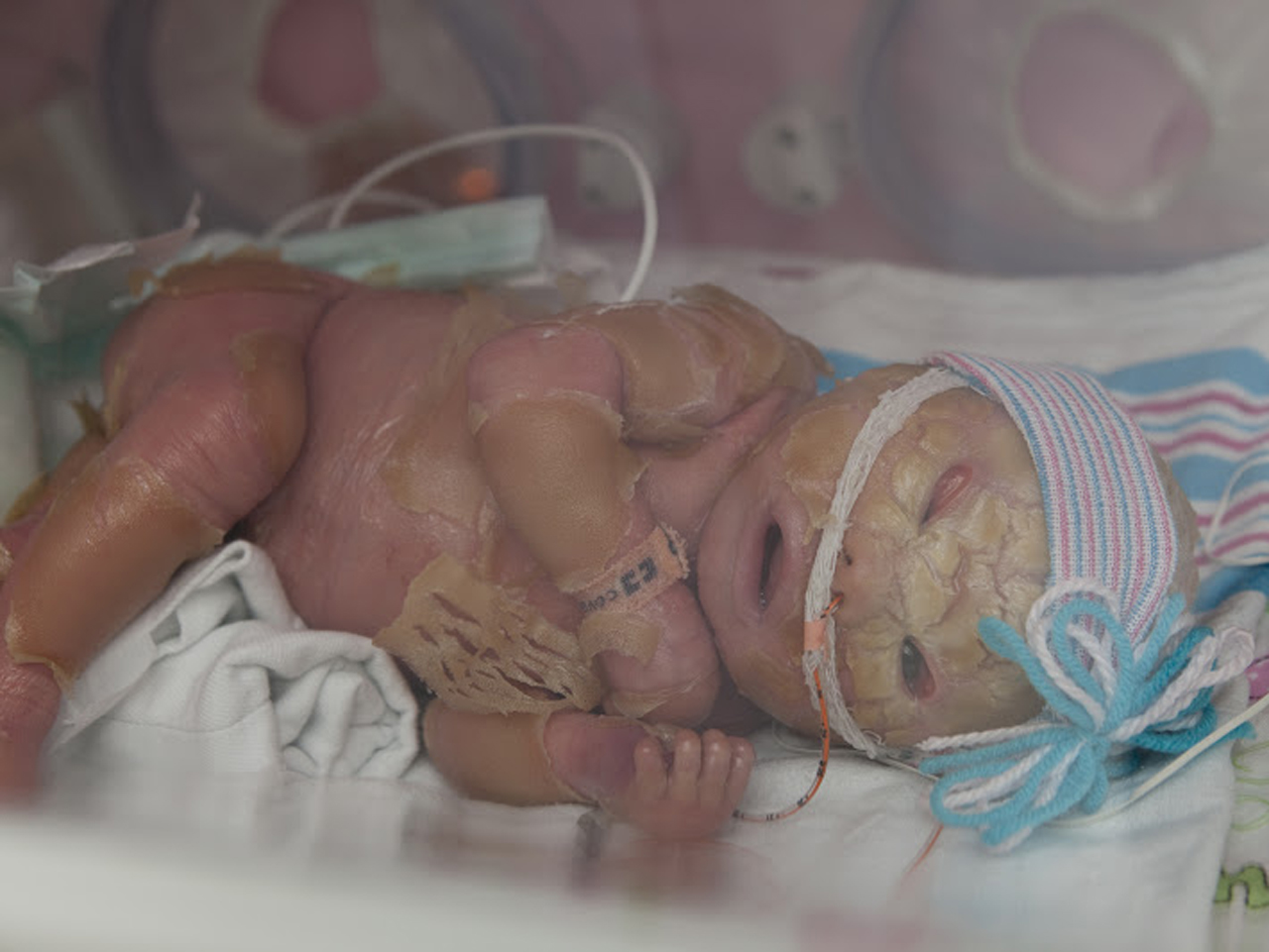 Meet Brenna, a baby with Harlequin Ichthyosis - Photo 9 ...