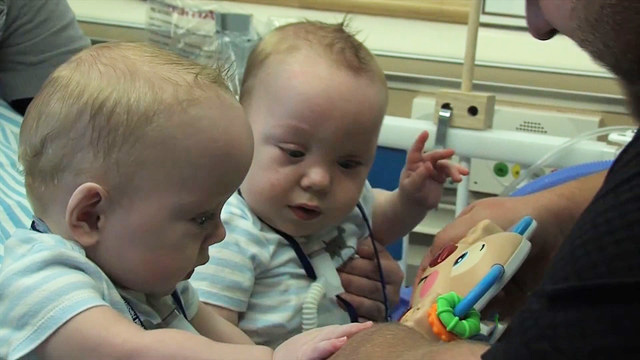 Formerly Conjoined Twin Boys Owen And Emmett Ezell Released From