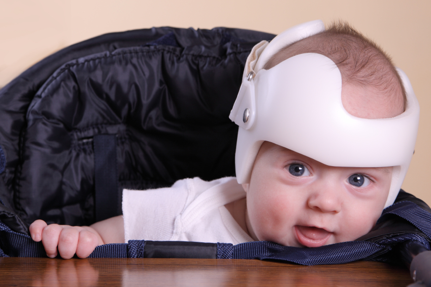 2fdd9b215 Helmets not helpful for babies with