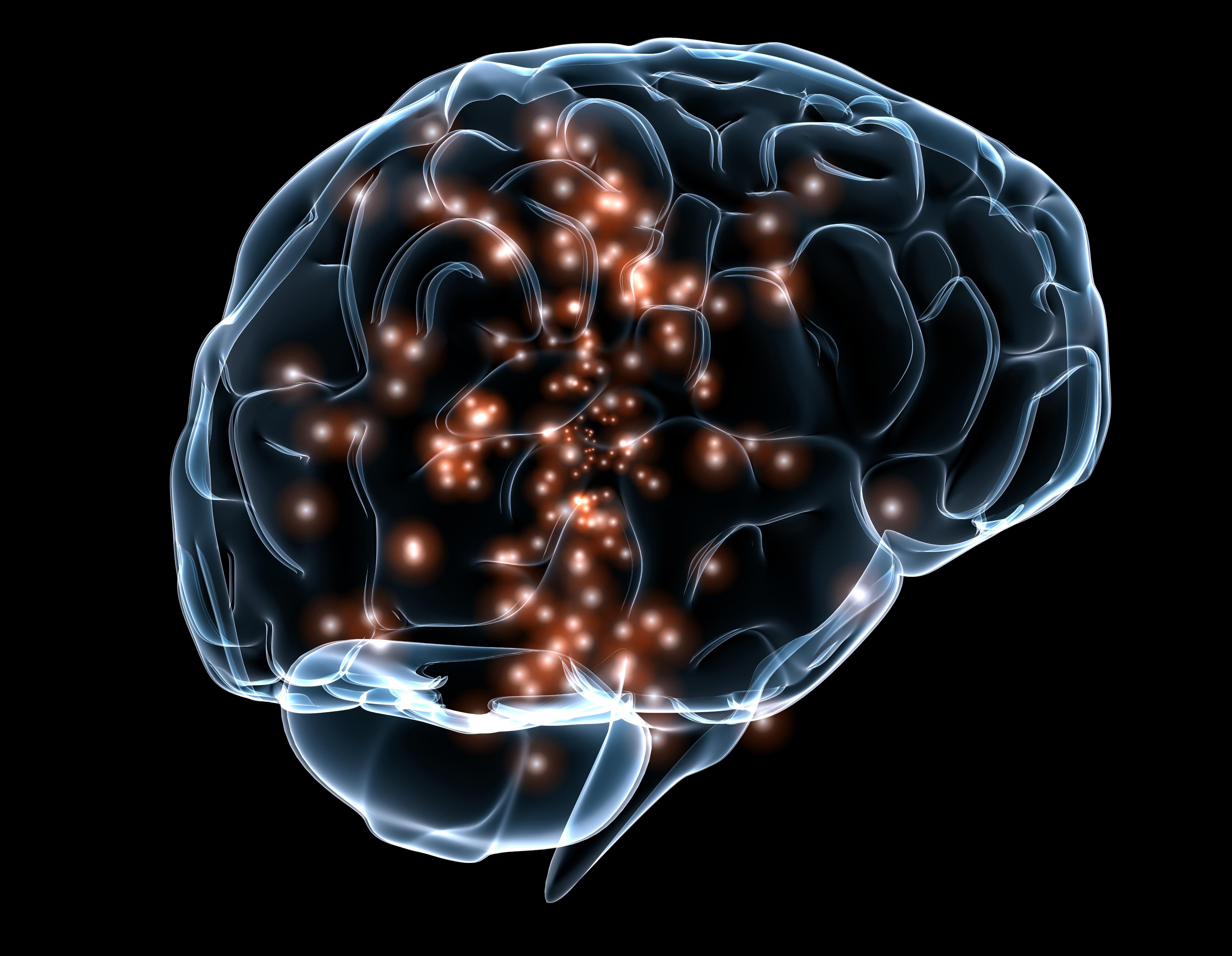 darpa program to develop brain implants for mental disorders - cbs, Cephalic Vein