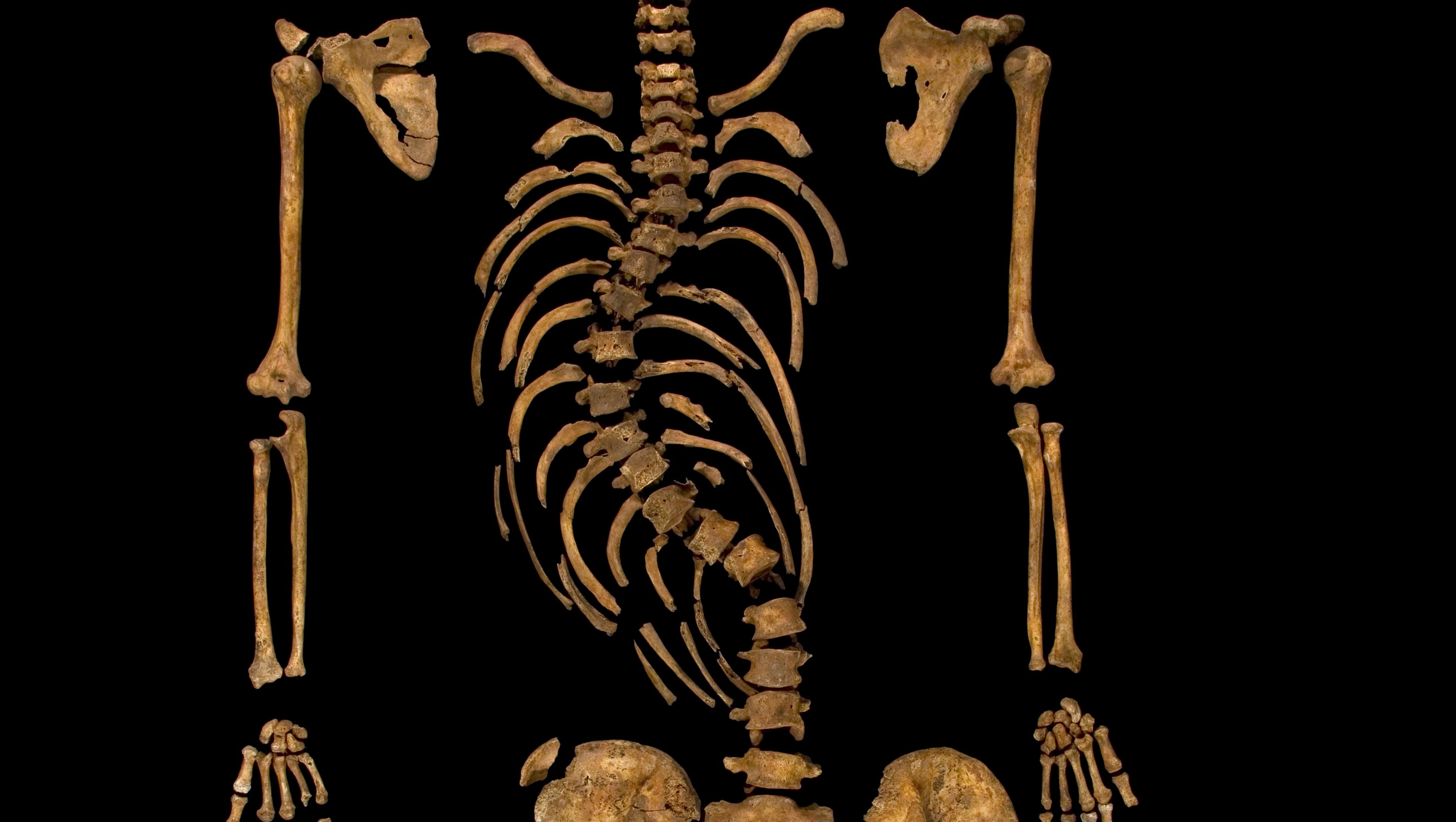 3d visualization sheds light on richard iiis spinal
