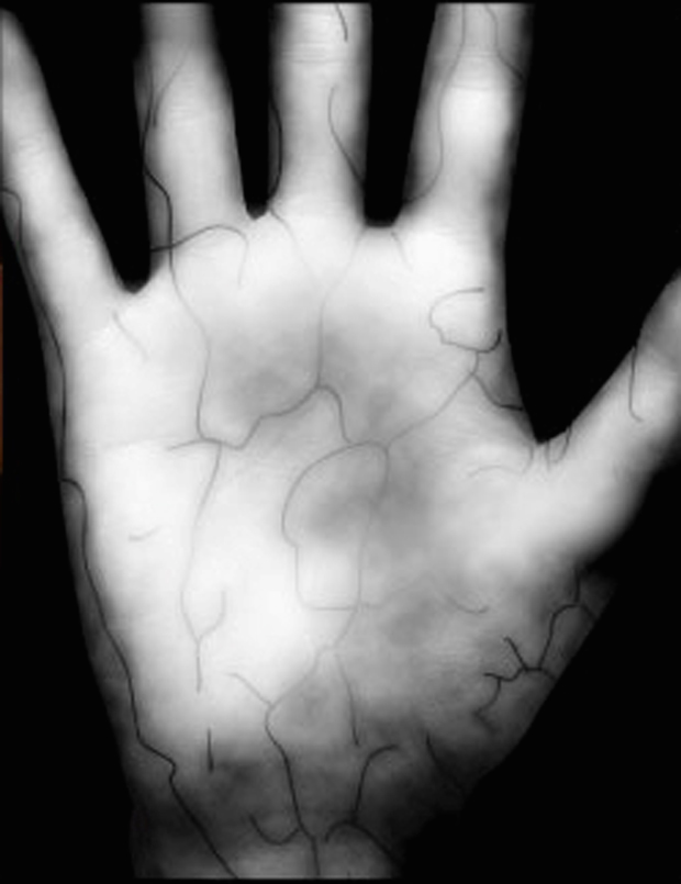 nyu-langone-patientsecure-palm-scan-620.jpg