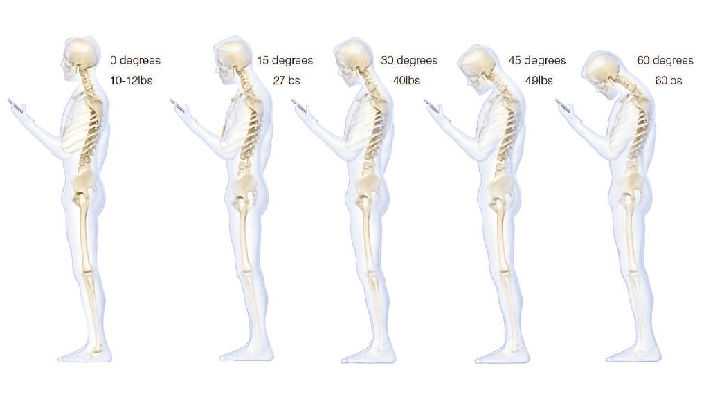 OMG, you're texting your way to back pain