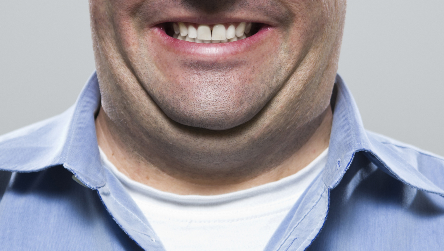 fda approves kybella new drug treatment for double chins cbs news