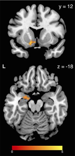 brain-scan-stress-eating-250w.jpg