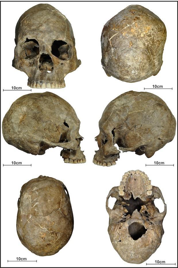 sep-26-cranio.jpg