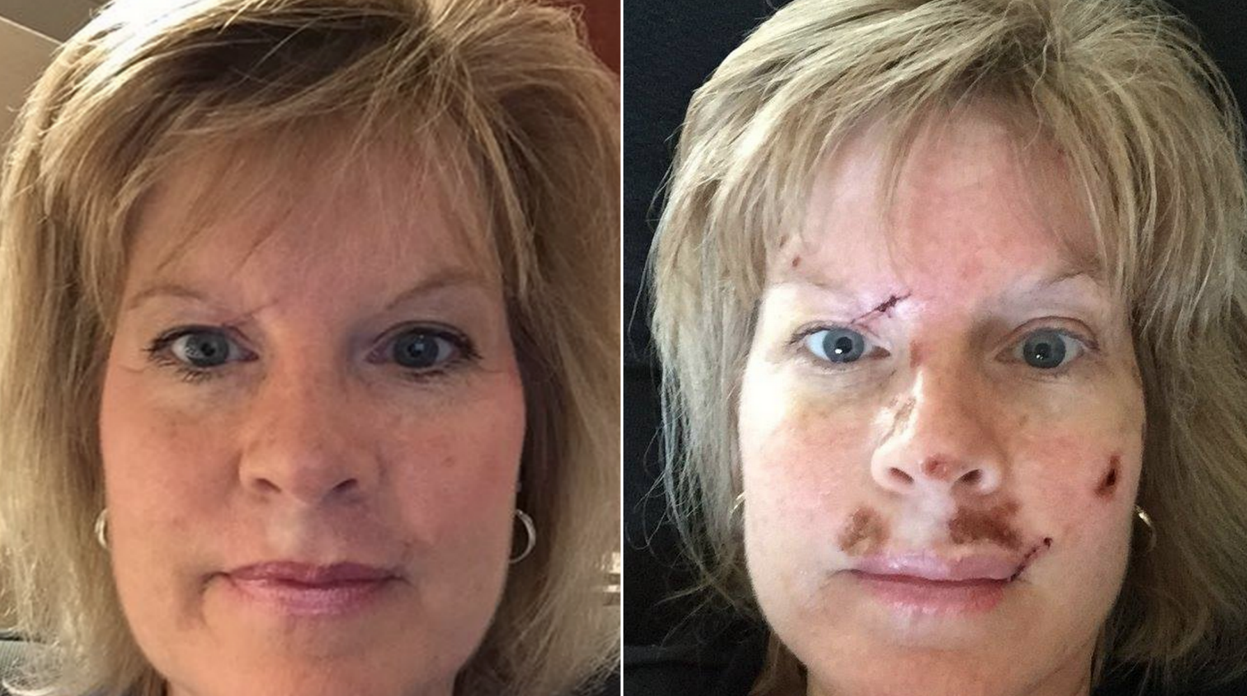 Woman Shares Graphic Images To Spread Skin Cancer Warning Cbs News