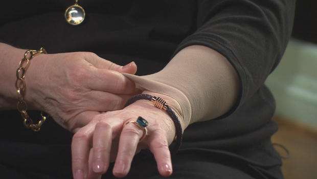 Kathy Bates on her battle with Lymphedema - CBS News